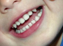 Mondhygiene Tandheelkundig Centrum Nieuwoord Woudenberg